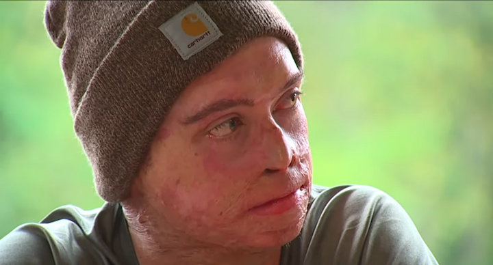 Firefighter Daniel Lyon wins $5 million settlement from Washington state utilities for burns suffered in the 2015 Twisp River fire. - Screencapture Via KCPQ