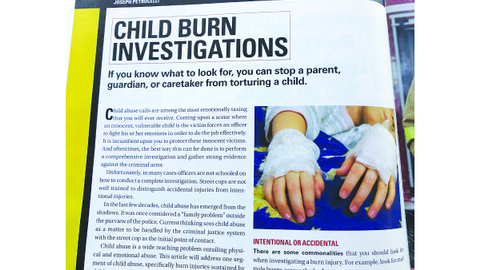 Patrol Response To…Child Burn Investigations