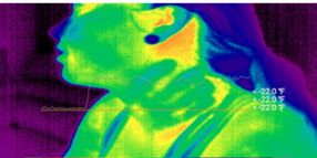 How To Close Assault Cases with Thermal Images