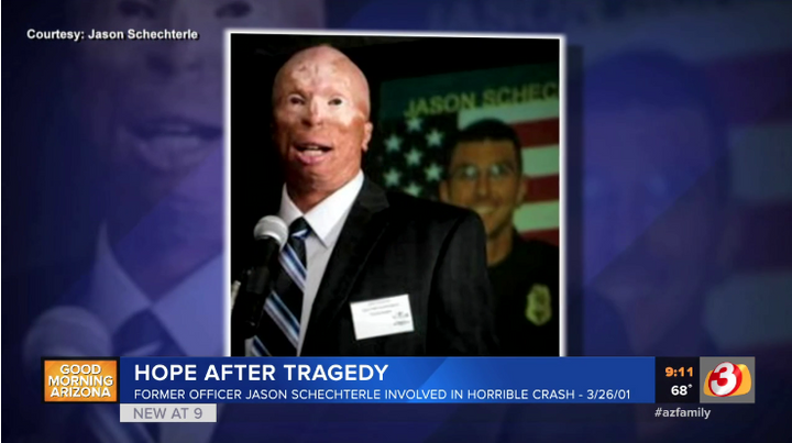 Former Phoenix officer Jason Schechterle was burned in a patrol car accident 18 years ago. Today, he continues his service by working with an area hospice. (Photo: AZ Family Screen Shot)