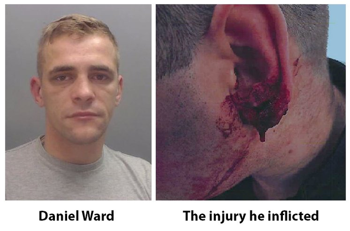 According to Fox News, the man—identified as 26-year-old Daniel Ward—attacked an officer in a Liverpool suburb as he was being arrested on suspicion of assault in connection to a robbery earlier in the year.