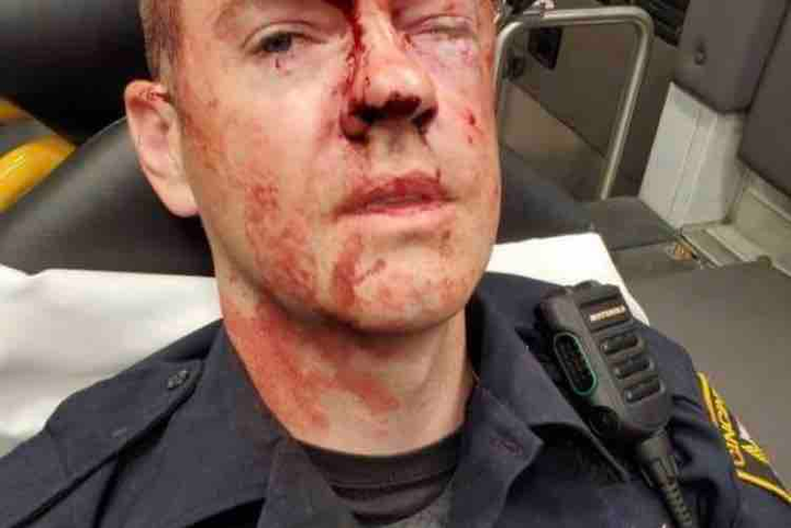 Photo of a Cincinnati officer beaten during a disorderly conduct arrest at an area YMCA. (Photo: FOP)