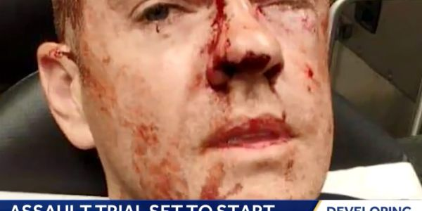 Police say Officer Doug Utecht was brutally beaten while attempting to arrest a suspected...