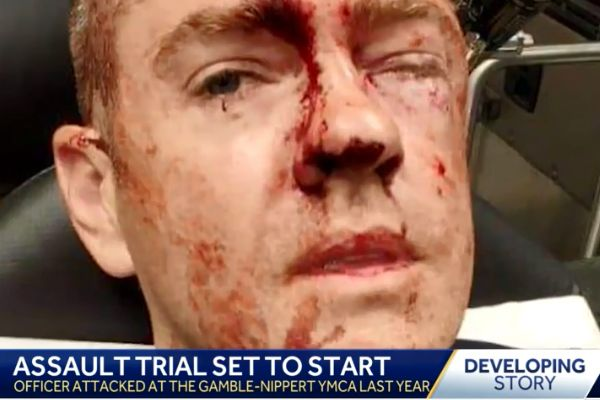 Police say Officer Doug Utecht was brutally beaten while attempting to arrest a suspected assailant—identified as Durrell Nichols. - Screen grab of news report.