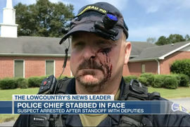 SC Chief Stabbed in Face at Home, Suspect in Custody