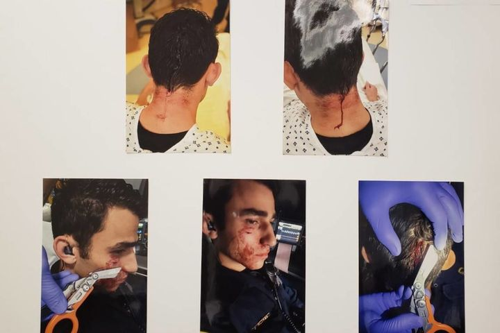 Photos released by police of the injuries sustained by Officer Christopher Flores after being attacked by Jamaica Hampton (Photo: SFPD) -