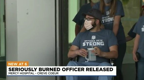 Ste. Genevieve, MO, police Officer Pete Unverferth, who was severely burned in a Molotov cocktail attack two weeks ago, was released from a St. Louis hospital Monday. (Photo: KMOV Screen Shot) -