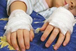 Child Burn Investigations