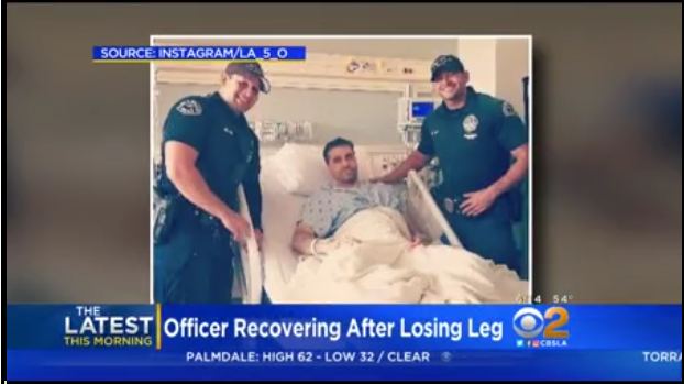 LAPD Officer Lost Leg After Being Struck by DUI Suspect on Freeway