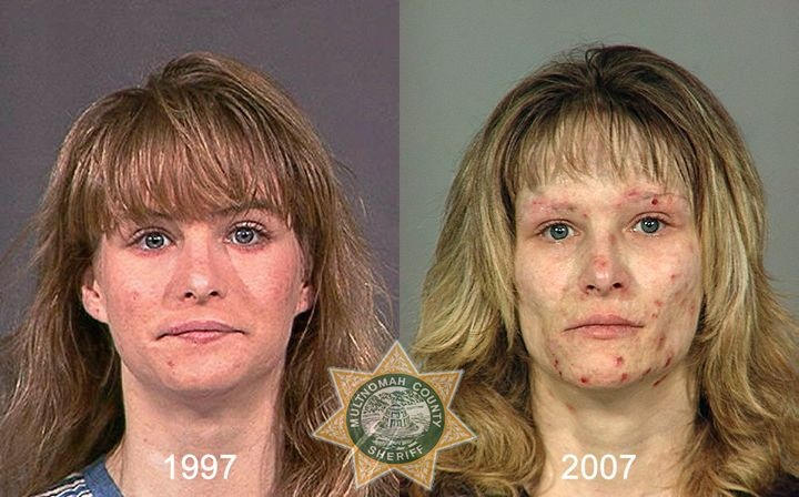 Oregon Sheriff Behind 'Faces of Meth' Creates 'From Drugs to Mugs'