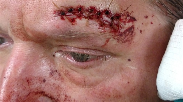 Seattle Officer Kerry Zieger was hit with a slab of concrete during a May Day riot. He is reportedly planning to sue the city for not providing adequate protective equipment. (Photo: Cline & Associates)