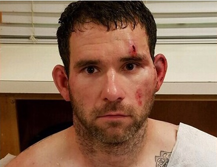 Brandon Carpenter is charged with attempted murder. Police say three officers were injured when he opened fire on them. (Photo: Louisiana State Police)