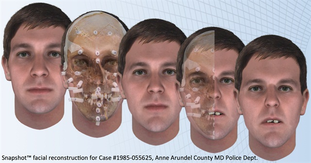 Snapshot facial reconstruction for Anne Arundel County cold case. (Image: Parabon NanoLabs)