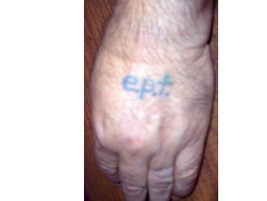"EPT is not a pregnancy test. At least not on this guy's hand. It stands for the ""El Paso Tip,""..."