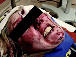Photos taken before a victim is cleaned up, such as this one in a hospital setting, can be...