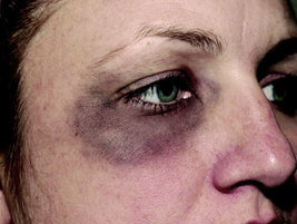 Quality photos of a victim's injuries are essential for the successful prosecution of an assault...