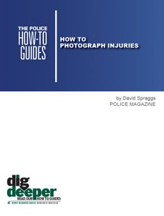 How to Photograph Injuries
